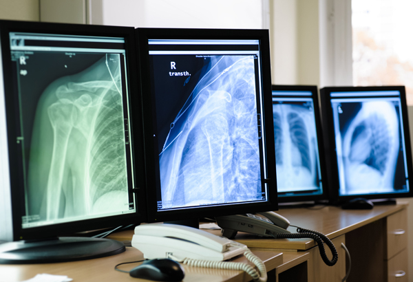 Radiografia Digital